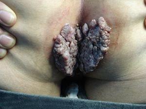 Анальный секс в презервативом