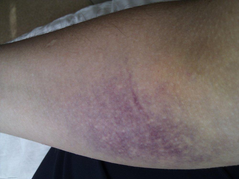 После анализа крови из вены появился синяк Справка 001-ГС у Улица Чаплыгина