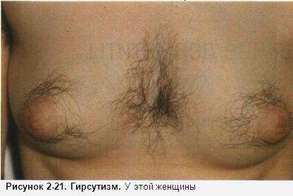 yana-guryanova-zhenskie-grudi-volosatie-foto-ogromnaya