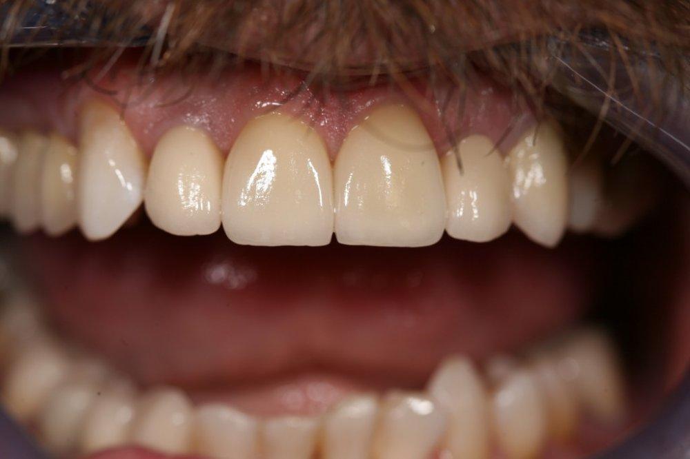 Фото пизда с зубами фото 220-496