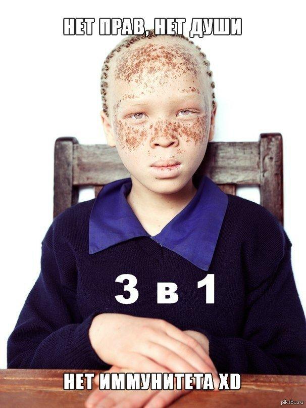 Негры альбиносы кто они