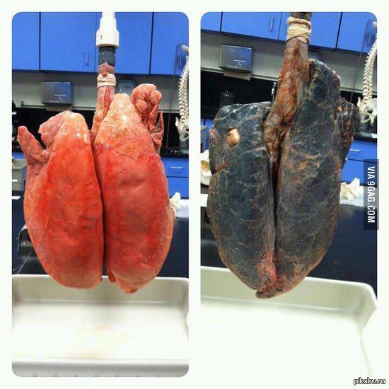 лёгкие курильщика фото