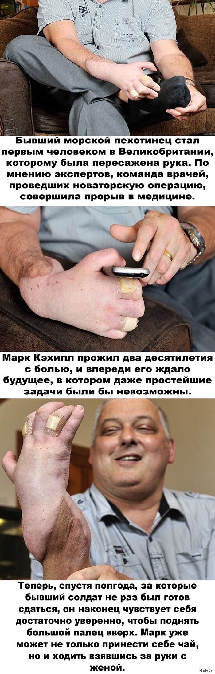 Успешная пересадка донорской руки.