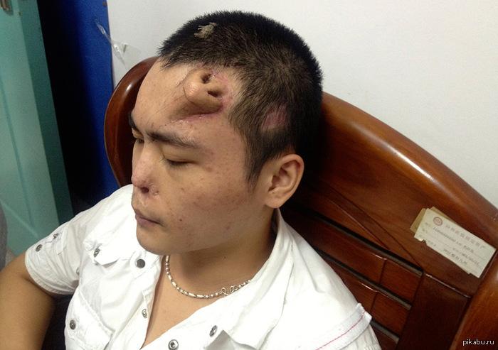 Во, дают... Китайские медики завершают приготовления к операции по «пересадке» носа.  22-летнему китайцу хирурги  «вырастили» замену пострадавшему носу прямо на лбу.