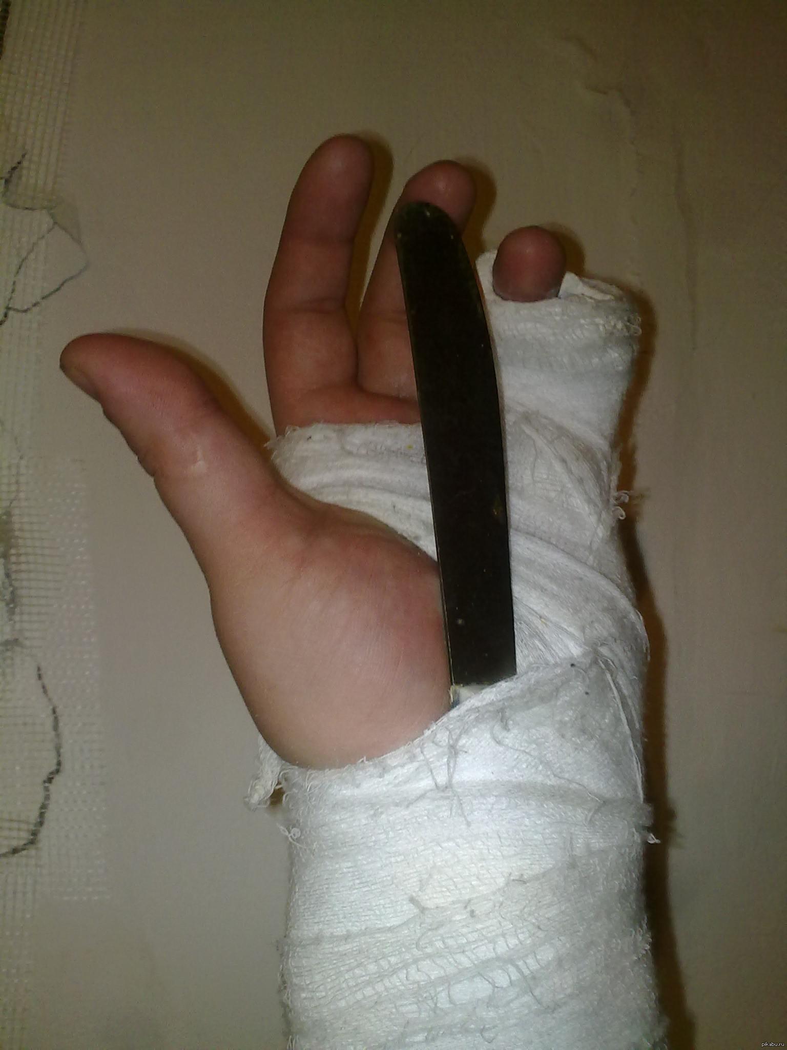 Я сломал руку картинки